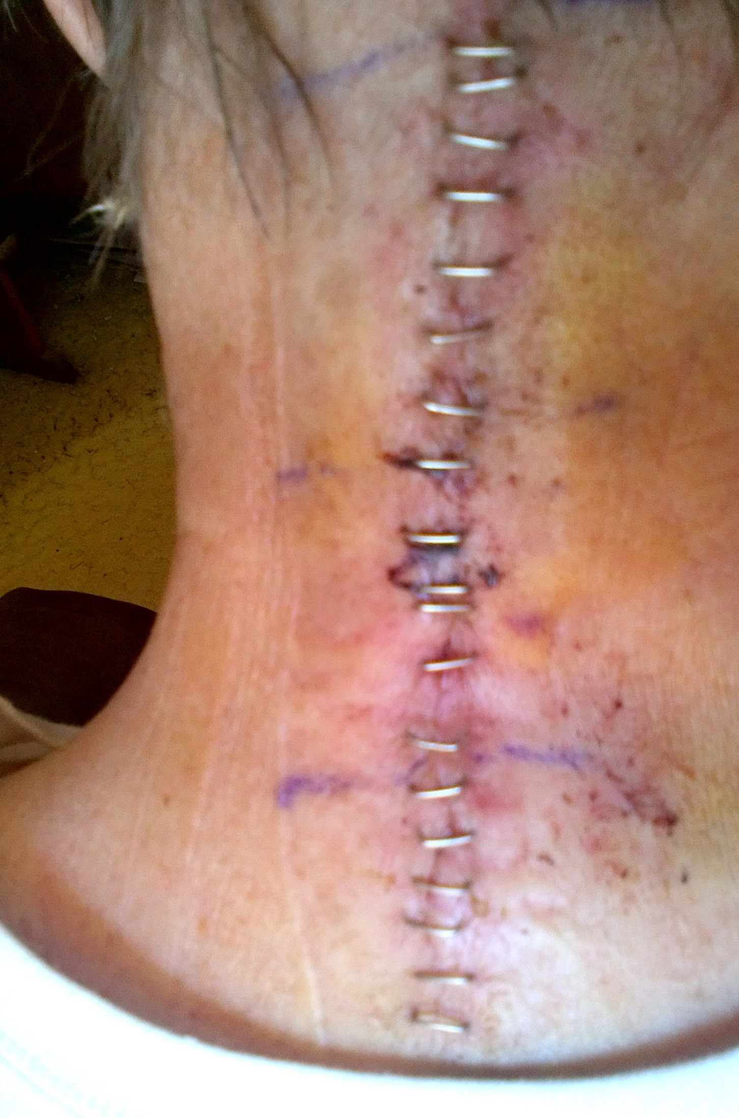 Neck incision for posterior C1.C2 cervical fusion (5 days post operation)