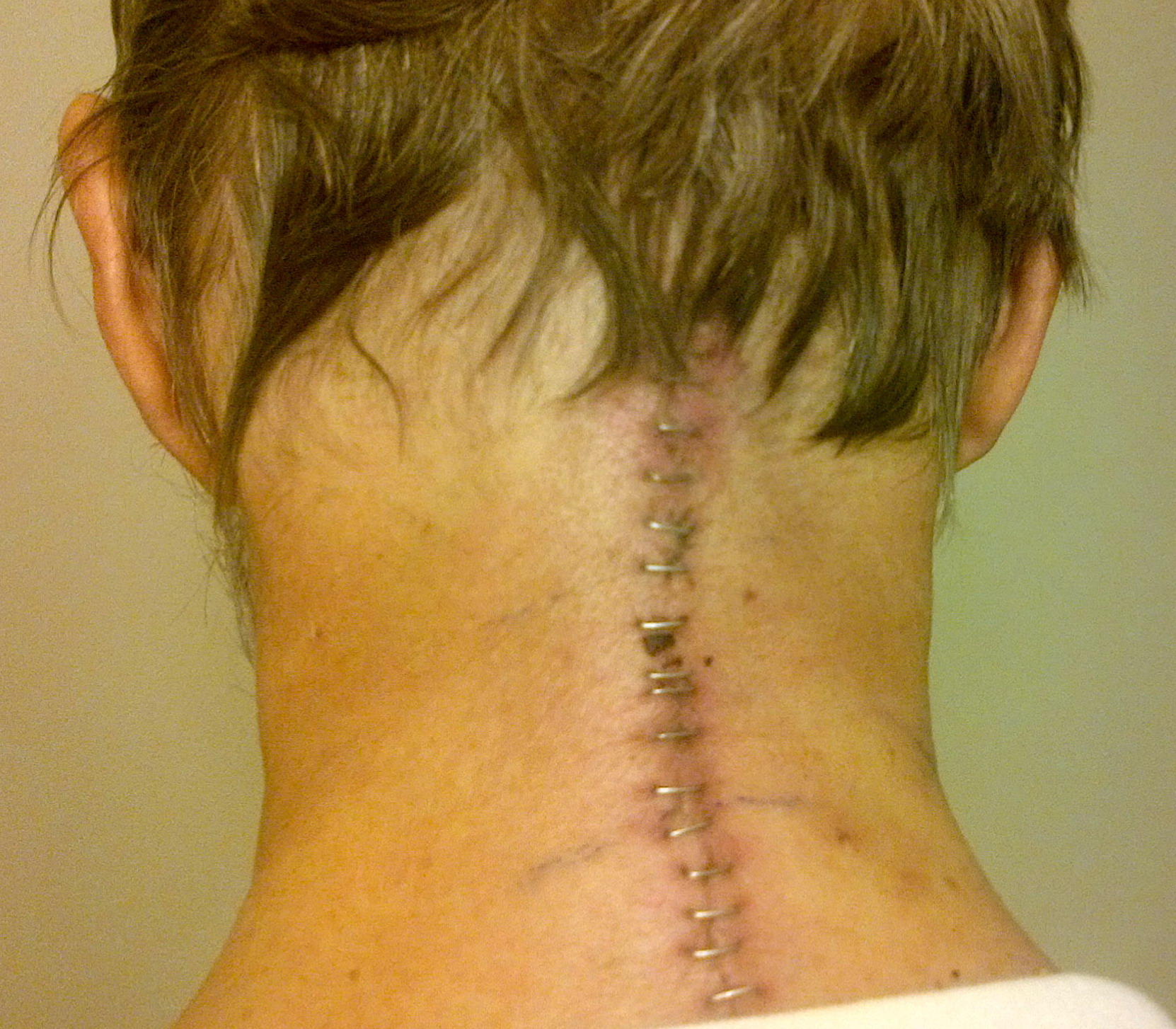 Neck incision for posterior C1.C2 cervical fusion (12 days post operation)