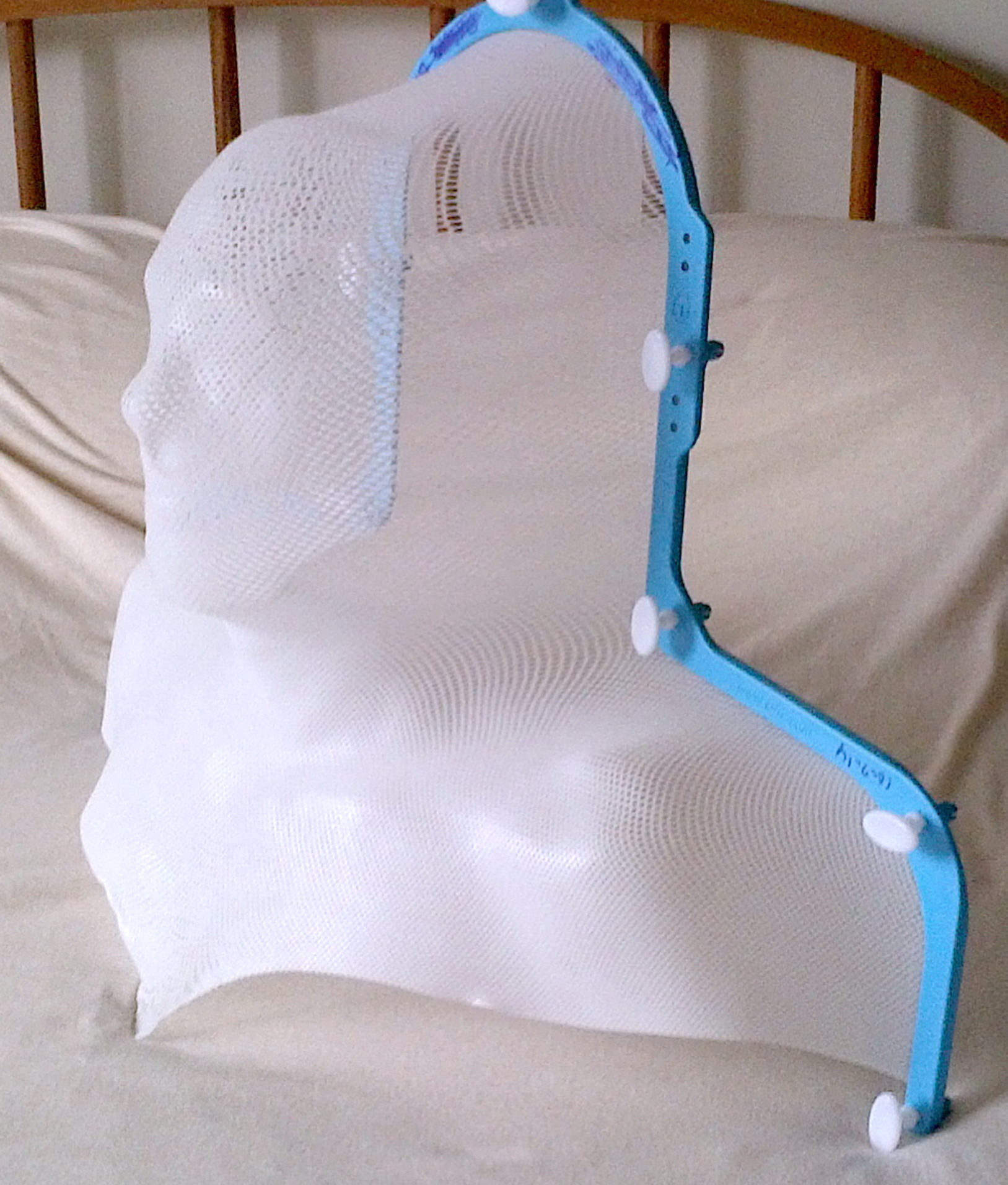 radiation mask --- bolted my head to table for radiation to neck